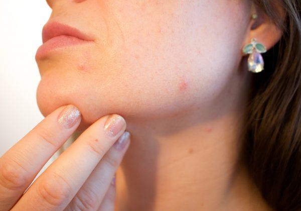 איך לשמור על עור הפנים חלק ונקי מפצעונים?